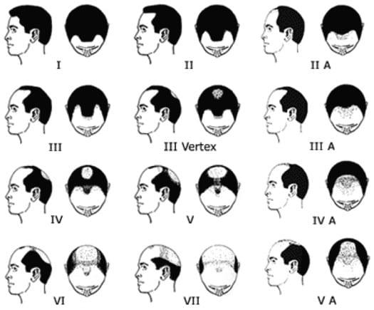 escala de hamilton norwood alopecia areata
