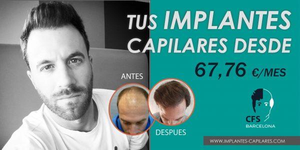 precio implantes capilares
