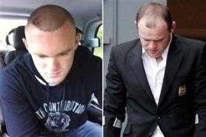 transplante de pelo de Rooney