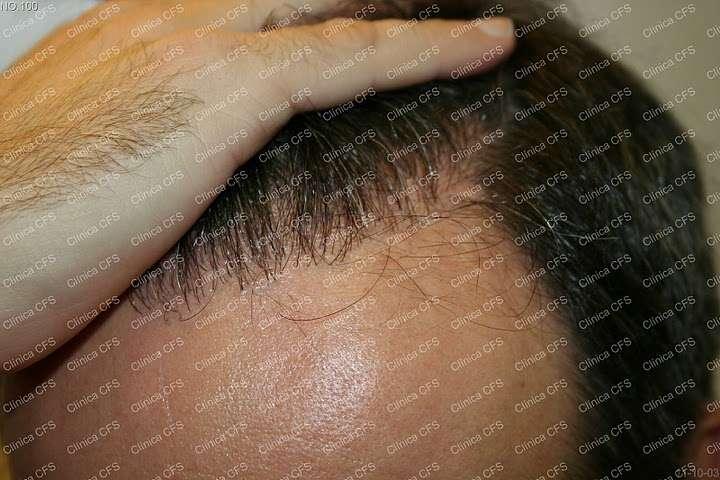 Microinjerto capilar. Testimonio