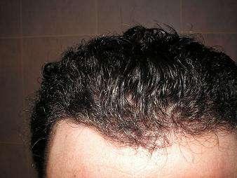 Cicatriz en implante capilar