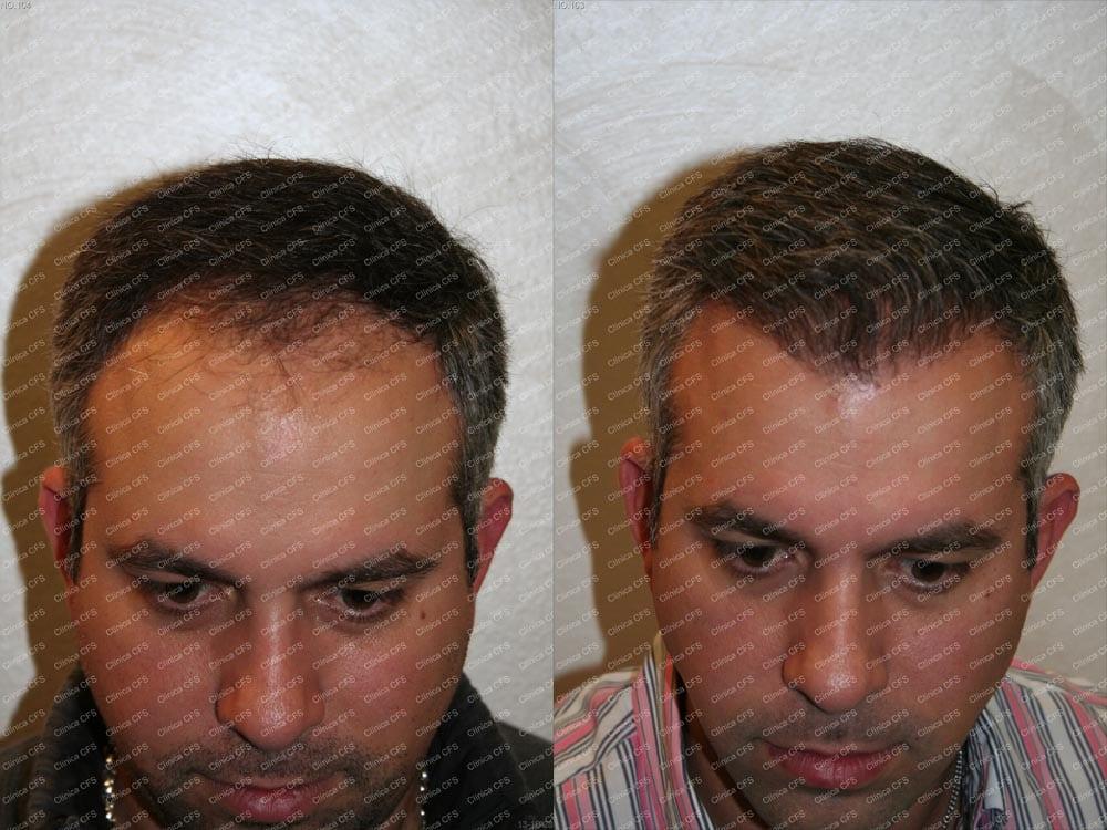 Implante capilar antes y después de la intervención