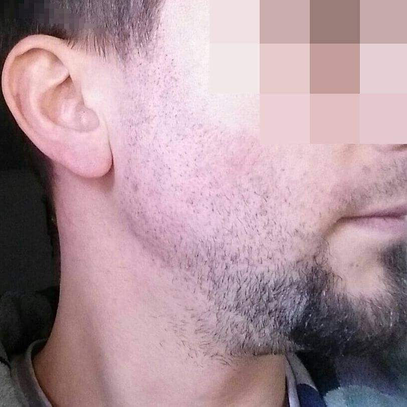 Implante de barba. 12 días después