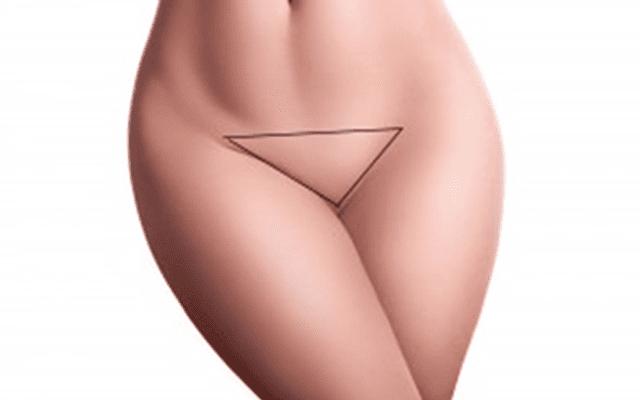 técnica de injertos capilares de pubis