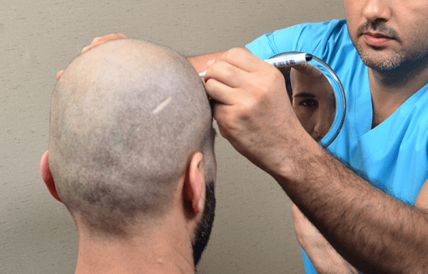 hair grafts in barcelona