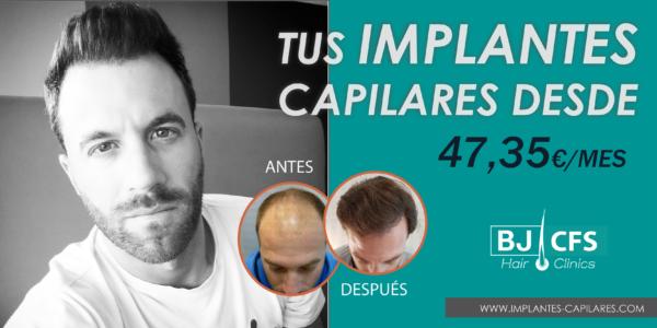 implantes capilares-precio
