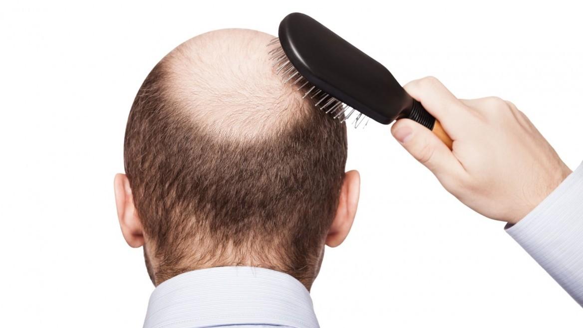 alopecia, injerto capilar para alopecia, trasplante capilar alopecia