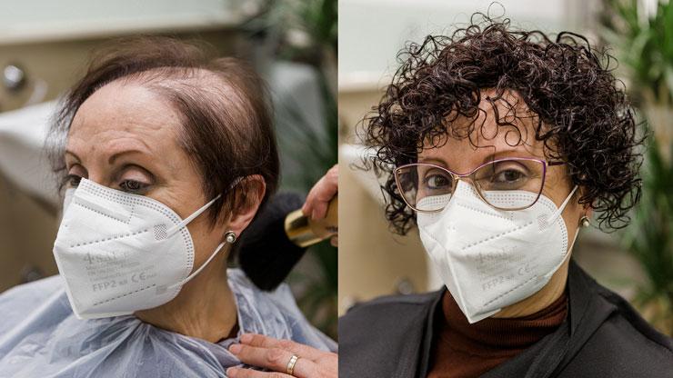 Protesis capilar Mujer